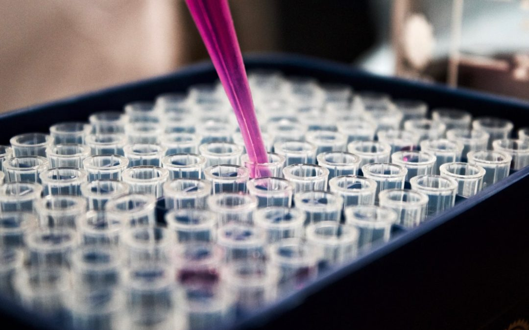 Hair Follicle Test: Most Efficient and Effective Test for Drugs Usage